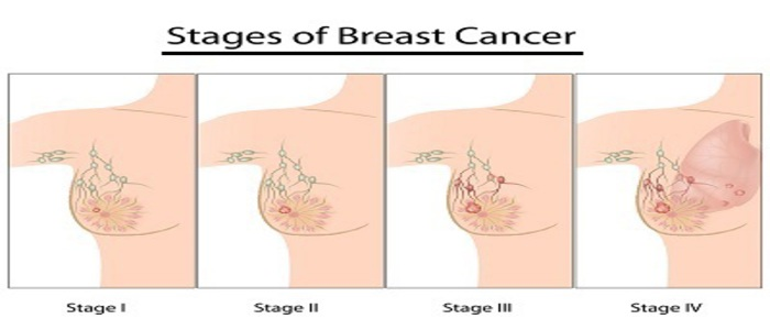 Differant stages of breast cancer