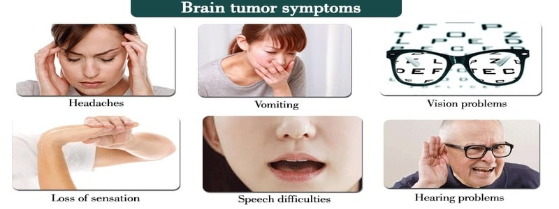 Causes ofbrain cancer