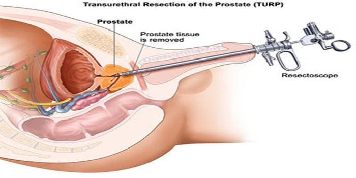 management of prostate enlargement