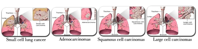 the types of lung cancer and its forms Squamous cell lung cancer, or squamous cell carcinoma cancer that begins in the skin or in tissues that line or cover internal organs of the lung, is one type of non-small cell lung cancer (nsclc) a group of lung cancers that are named for the kinds of cells found in the cancer and how the cells look under a microscope.