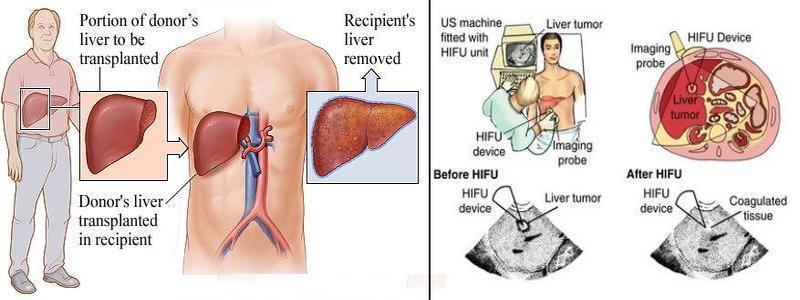 Liver cancer chemo