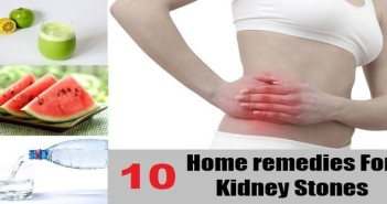Best Home Remedies for Kidney Stones
