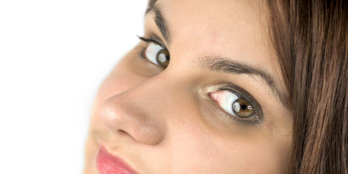 what are the causes for periorbital dark circles